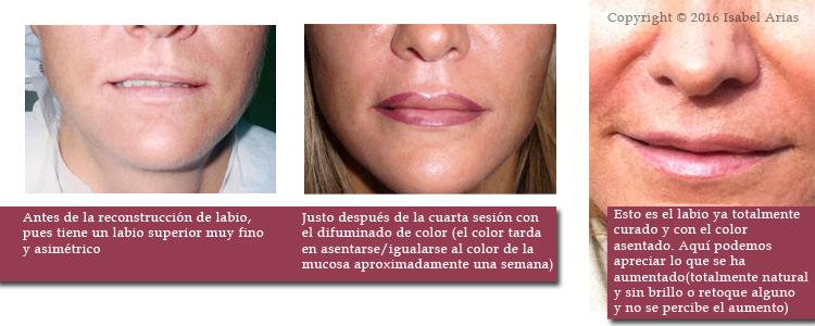 Tatuaje de labios en Madrid
